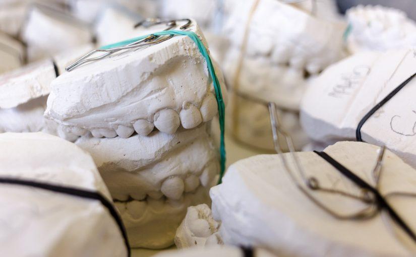 Zła metoda odżywiania się to większe niedostatki w zębach natomiast dodatkowo ich utratę